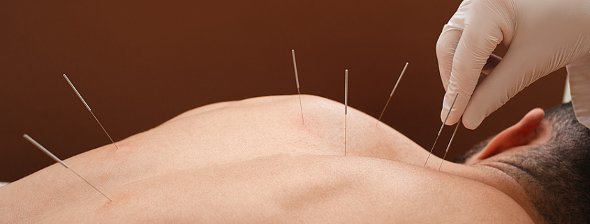 acupuncture in Toowoomba