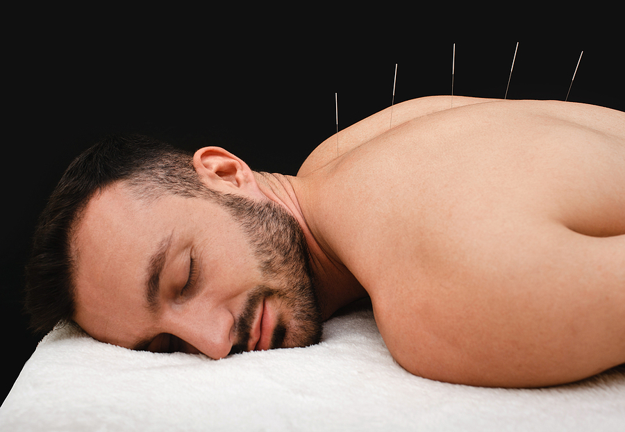Male during acupuncture procedure.